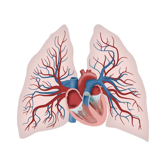 Notfall: Lungenembolie
