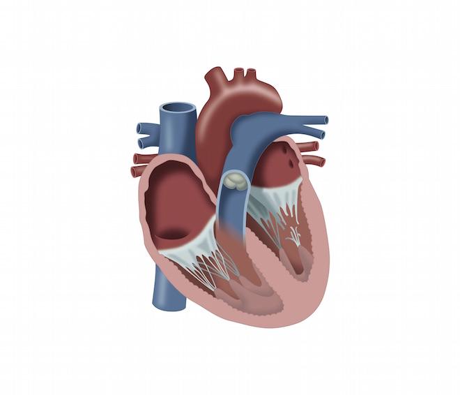 Die Herzinsuffizienz aus pflegerischer Sicht