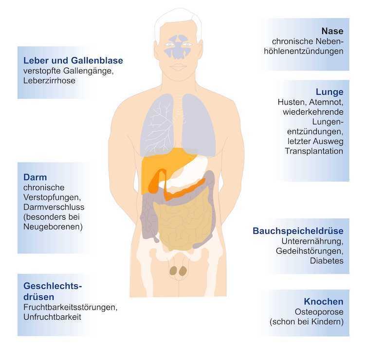 Mukoviszidose – eine Stoffwechselerkrankung