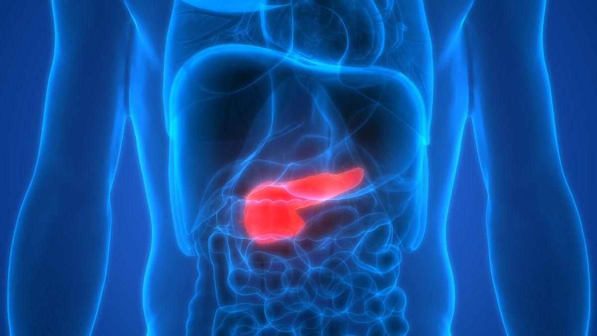 Krankheitsbild: Bauchspeicheldrüsenkrebs