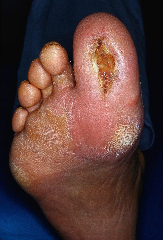 Hautzeichen innerer Erkrankungen